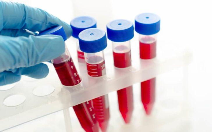 inzulinrezisztencia kezelése
